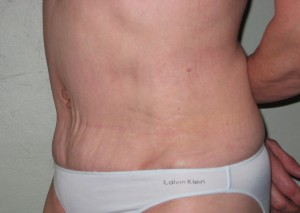 Tummy tuck after surgery