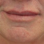 Lips follow Restylane injection Sacramento California Plastic Surgery