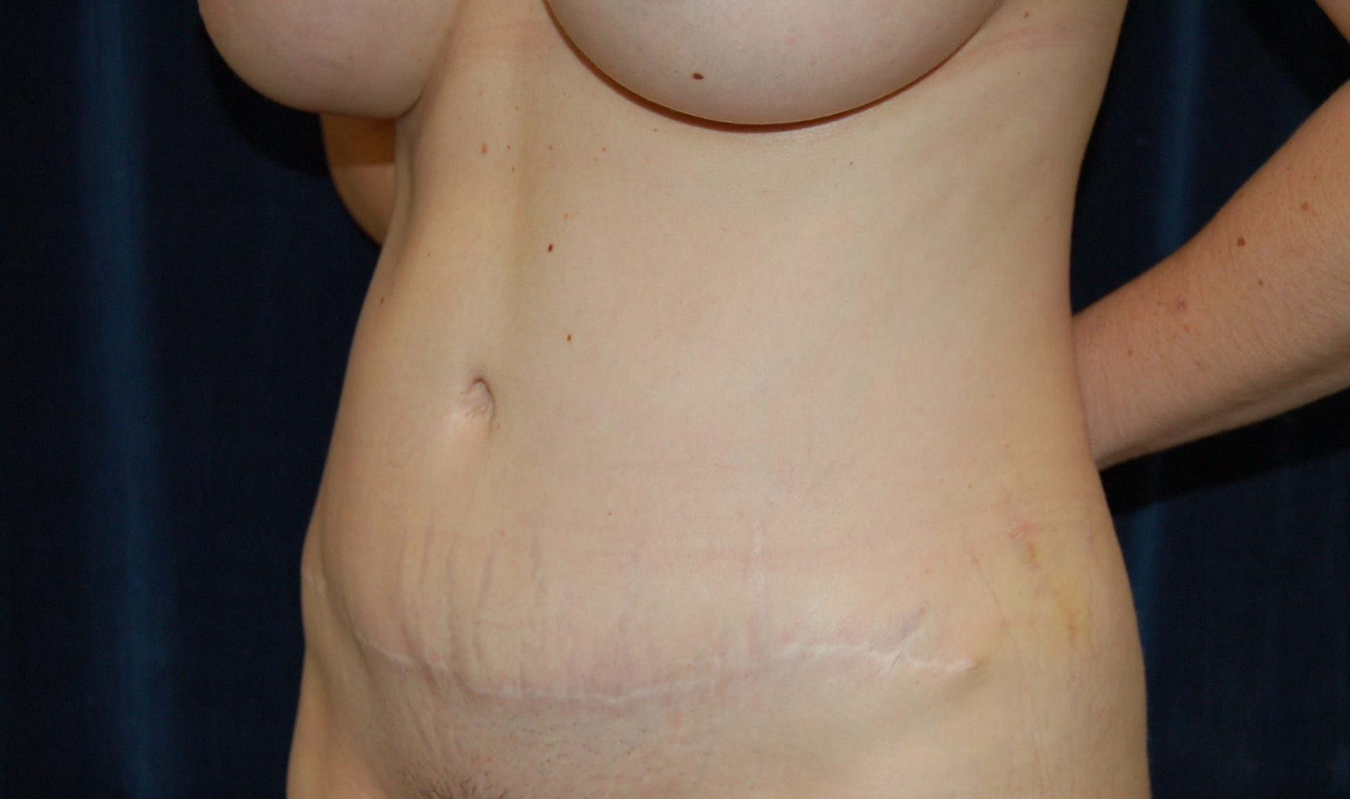 After tummy tuck (abdominopalsty) liposuction and breast augmentation