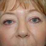 Following a upper adn lower eyelid lift in sacramento california