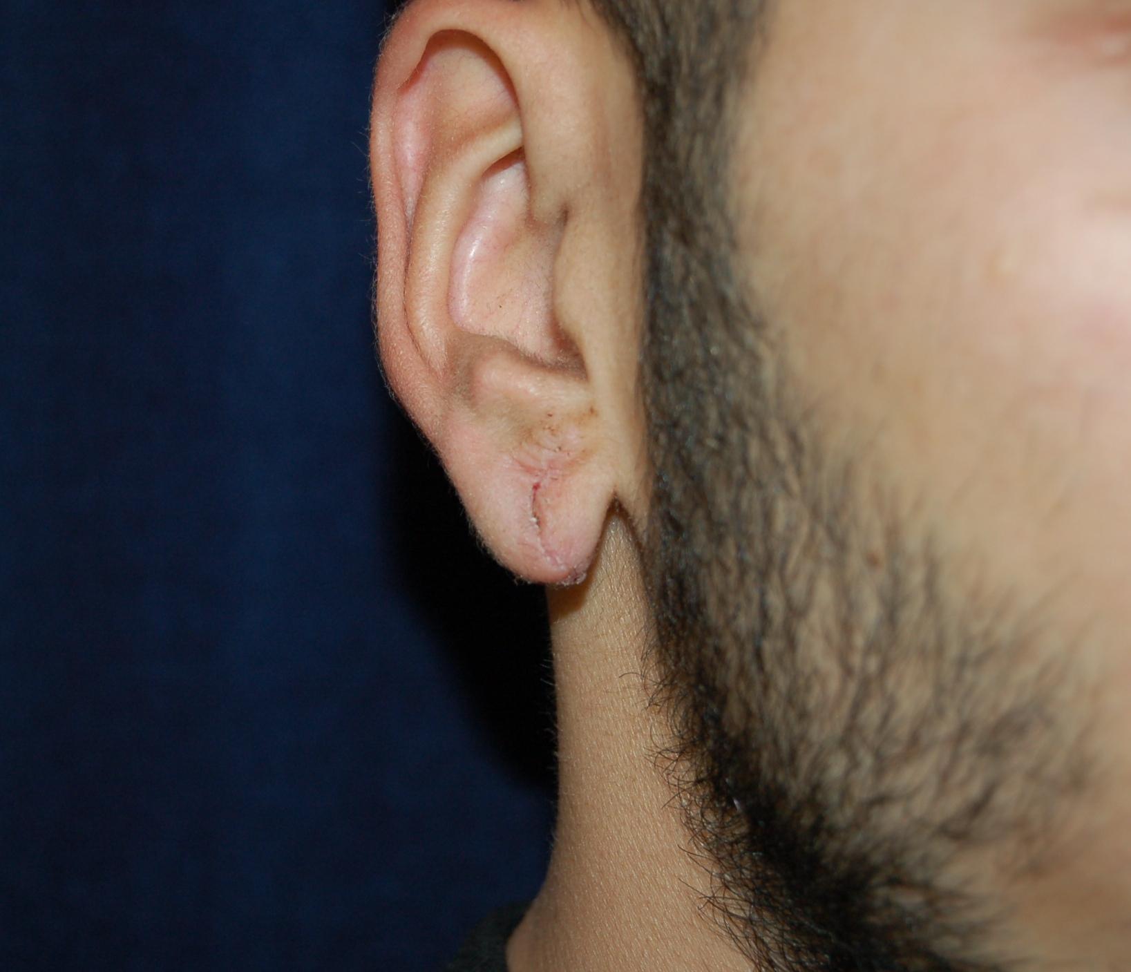 Otoplasty Ear Pinning Surgery Sacramento Roseville Stockton