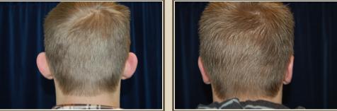 ear-pinning-sacramento