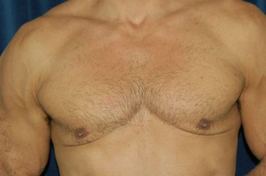 Gynecomastia Surgery Male Breast Reduction Sacramento Ca
